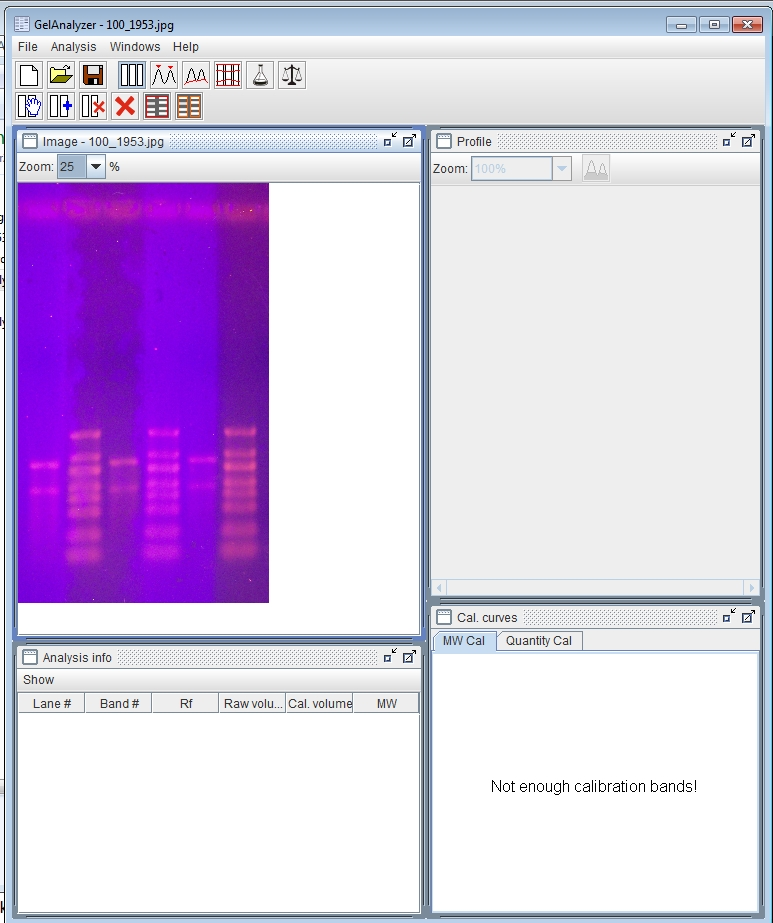 Gel_Analyzer_Desktop